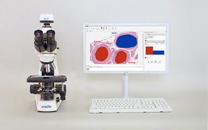 Анализ, подготовка отчетов и ведение цифровых альбомов в микроскопии Vision Bio® Analyze
