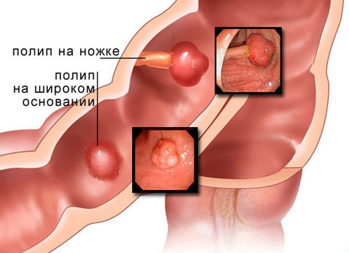 Полипы в желудке, кишечнике. Комплекс 1