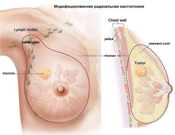 Рак груди. Комплекс