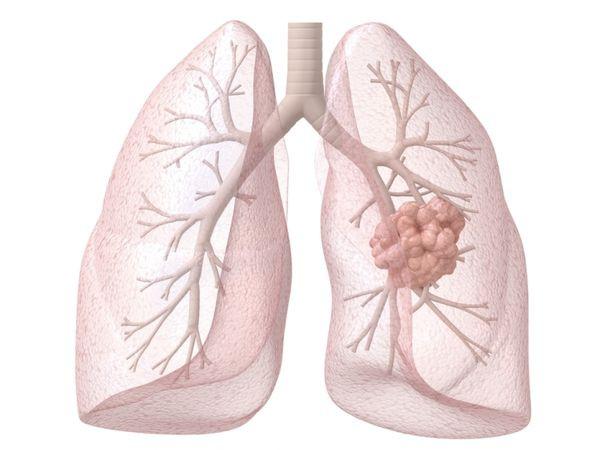 Рак лёгких. Комплекс 1