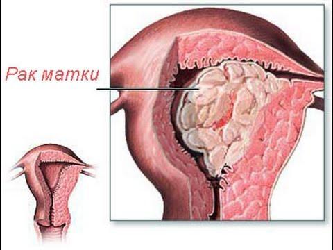 Рак матки, яичников. Комплекс 1