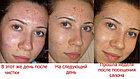 Комбинированная чистка лица, фото 3