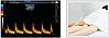 УЗИ Сканер Zoncare Q7 - Полностью цифровая ультразвуковая система, фото 3