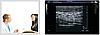 УЗИ Сканер Zoncare Q7 - Полностью цифровая ультразвуковая система, фото 4