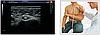 УЗИ Сканер Zoncare Q7 - Полностью цифровая ультразвуковая система, фото 5