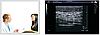 УЗИ Сканер  Zoncare Q9 -  Полностью цифровая допплеровская диагностическая система Премиум класса, фото 3