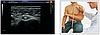 УЗИ Сканер  Zoncare Q9 -  Полностью цифровая допплеровская диагностическая система Премиум класса, фото 4