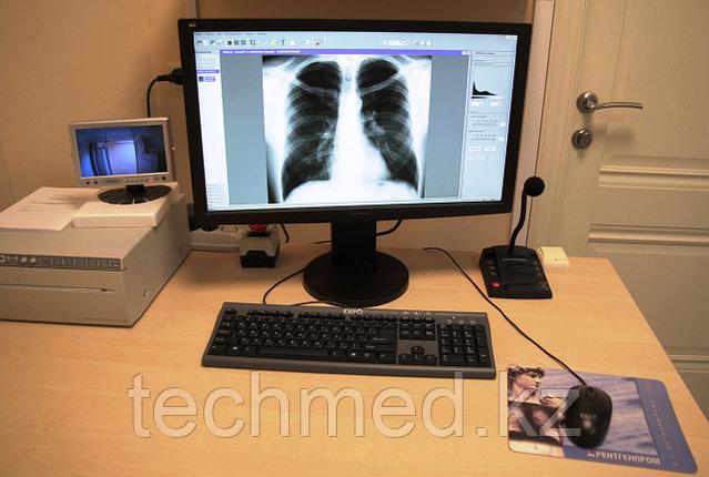Флюорограф малодозовый цифровой сканирующий ПроСкан-2000, фото 2