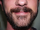 Пересадка волос на лицо, фото 3