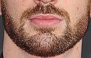 Пересадка волос на лицо, фото 5