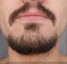 Пересадка волос на лицо, фото 8