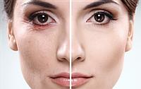 Безхирургическая подтяжка кожи лица