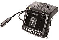 Ультразвуковой сканер KX5200