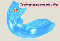 Силиконовый трейнер для зубов,Алматы, фото 2