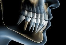 Имплантация зубов в Алматы
