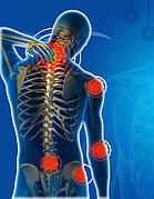 Лечение суставов, болей в спине, ревматизм и тд