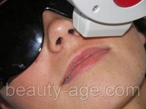 Элос эпиляция усиков верхней губы