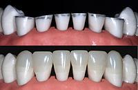 Художественная реставрация зубов Алматы