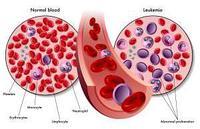 Лечение лейкемии – основные способы и схемы терапии