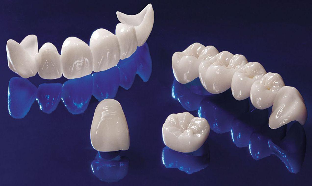Протезирование зубов: керамика или металлокерамика?