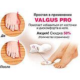 Valgus Pro (Валгус Про) фиксатор –  Надежная защита Ваших ног ., фото 5