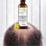 """Сыворотка активатор для роста волос """"Disaar Hair  Essence Oil"""", фото 2"""