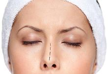 Эндоскопическая подслизистая резекция носовой перегородки