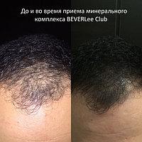 Алопеция у мужчин! Избавиться от этой проблемы и вернуть здоровый вид своим волосам Вам поможет минеральный комплекс MAGIC PACK! Ведь состояние волос и кожи - проекция состояния здоровья нашего организма. Работает быстро, эффективно и безопасно!