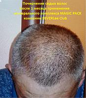 Избавьтесь от седины без краски за короткое время! Получите омоложение на 10-15 лет употребляя минеральный комплекс MAGIC PACK