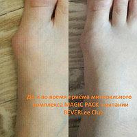Воспалённые шишки (так называемые косточки) на больших пальцах ног! Вовремя приостанови процесс - это ВАЖНО! 60 минералов в комплексе восстановят плотность костей и снимут воспаление. 97% усвояемость КАЛЬЦИЯ и 100% натуральный и безопасный продукт!