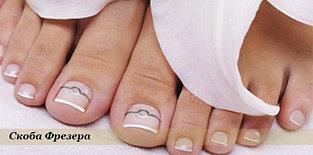 Скоба 3ТО - лечение вросшего ногтя.