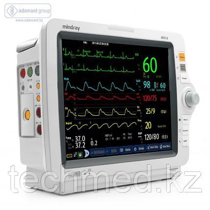 Монитор пациента iMEC 8 , фото 2