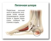 Пластырь Китайский магнитный от шпор и косточек на ногах Hyperosteogeny( Дед) 4шт, фото 3