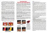 Лечебные компрессионные изделия, фото 2