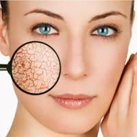 Натуральные препараты для лечения кожных заболеваний
