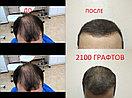 Пересадка бороды в Алматы, фото 2