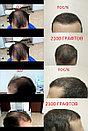 Пересадка бороды в Алматы, фото 3