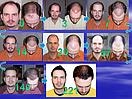 Пересадка бороды в Алматы, фото 5