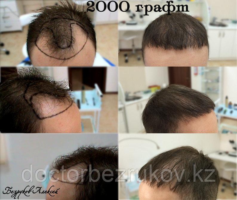 Трансплантация волос Алматы