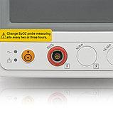 """Монитор прикроватный многофункциональный медицинский """"Armed"""" PC-900sn (SpO2 + N1Bp), фото 9"""