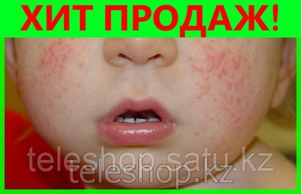 Крем воск Здоров от дерматита (у детей и взрослых)