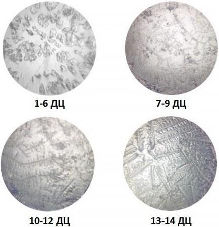"""Так выглядят образцы слюны, взятые в разные периоды женского цикла, в окуляре прибора """"Happy End"""""""