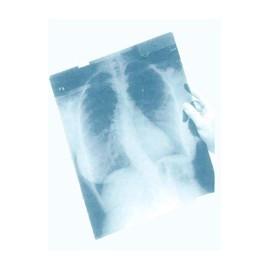 Рентгеновская пленка CARESTREAM MXG (зеленочувствительная)
