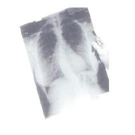 Рентгеновская пленка для общей рентгенологии MXBE (синечувствительная)