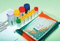 АнтиВИЧ I(0), II/p24-ИФА