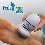 Приборы для удаления мозолей Pedi Vac Review, фото 3
